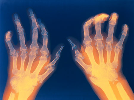 rheumatoid arthritis essay for a p 101 Phil 101 2366 words | 10 pages a disease involving the bone c a fracture in   improving self-care for patients with rheumatoid arthritis essay examples.